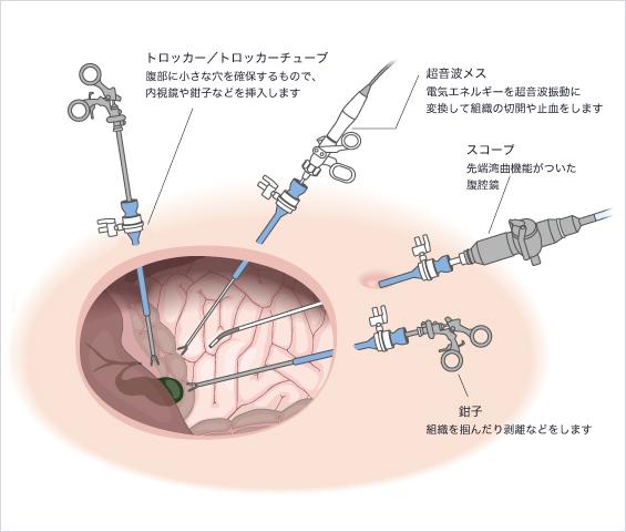 腹腔鏡下手術について | 丸子中...